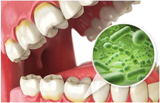 炎 治療 歯肉 歯肉炎について